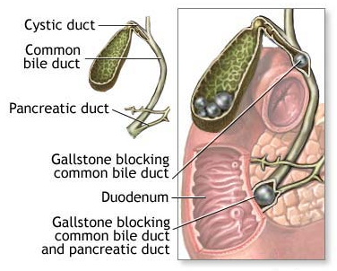 Gallbladder image
